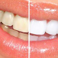 Witte tanden bij Tandartspraktijk Wolvenstraat