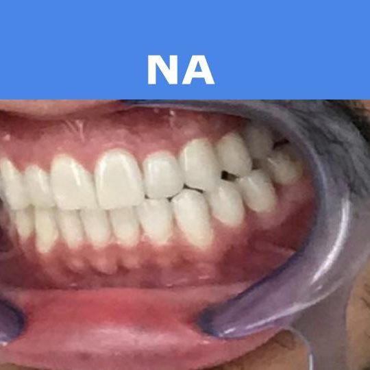 voor & na (3)
