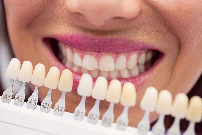 tandarts in het buitenland