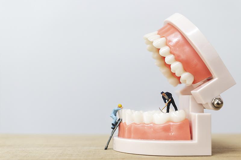 ontstoken tandvlees, tandarts Amsterdam, tandarts Jordaan, mondheelkunde Amsterdam, mondheelkunde jordaan