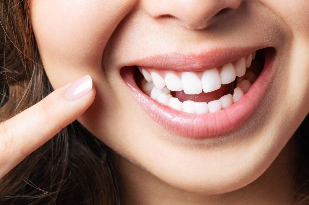 witte tanden, witte tanden amsterdam, wit gebit, wit gebit amsterdam, tanden amsterdam, gebit amsterdam, tandarts, tandarts amsterdam, tandarts wolvenstraat, tandarts jordaan, witte tanden jordaan, witte tanden wolvenstraat, witte tand, witte tand amsterdam, witte tand wolvenstraat, witte tand jordaan, gebit wolvenstraat, gebit jordaan